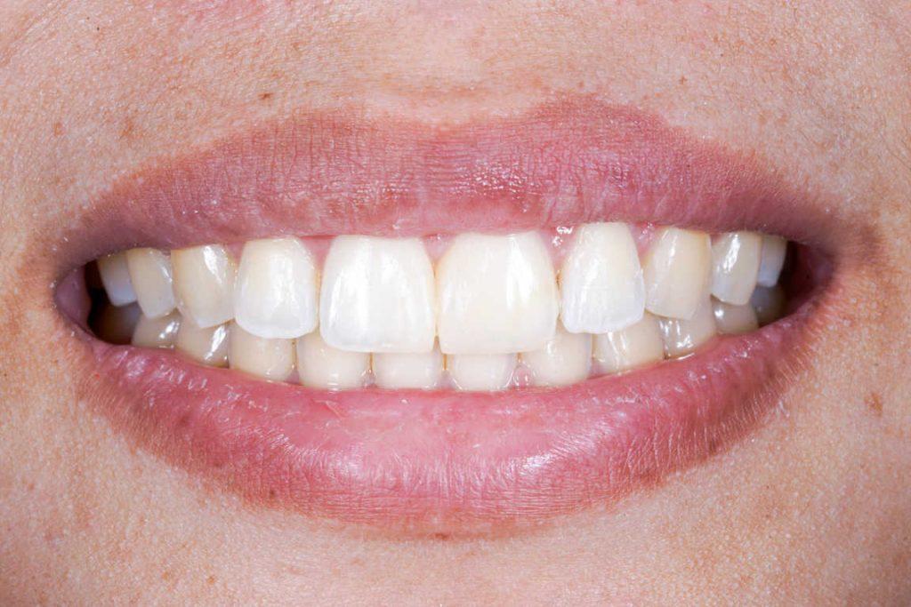 El blanqueamiento dental está de moda