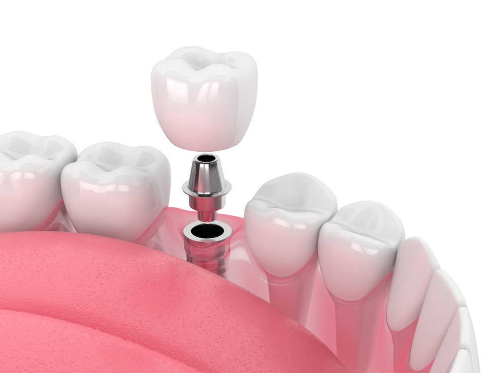 Los implantes dentales y sus avances